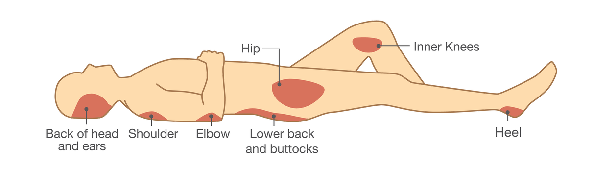illustration supine body with highlighting areas at high risk for pressure injury prevention and treatment