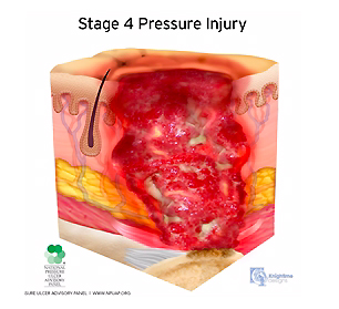 medical illustration stage four pressure injury cutaway cross section