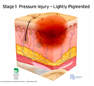 medical illustration stage one pressure injury cutaway cross section