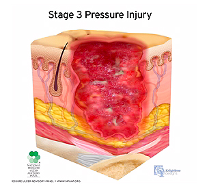 medical illustration stage three pressure injury cutaway cross section