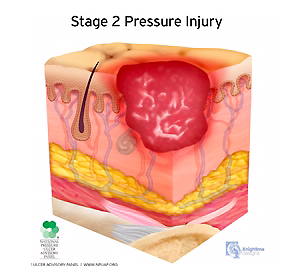 medical illustration stage two pressure injury cutaway cross section