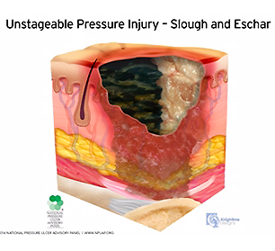 medical illustration unstageable pressure injury with slough and eschar
